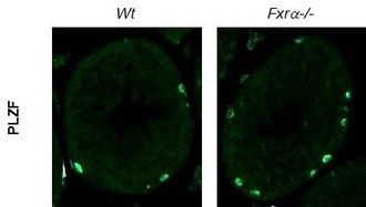 FXRα  a new actor  of germinal stem cells fate.